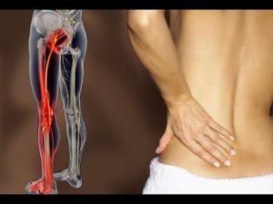 როგორ ვუმკურნალოთ საჯდომის ნერვს: მარტივი მეთოდი, რომელიც ტკივილისგან გაგათავისუფლებთ